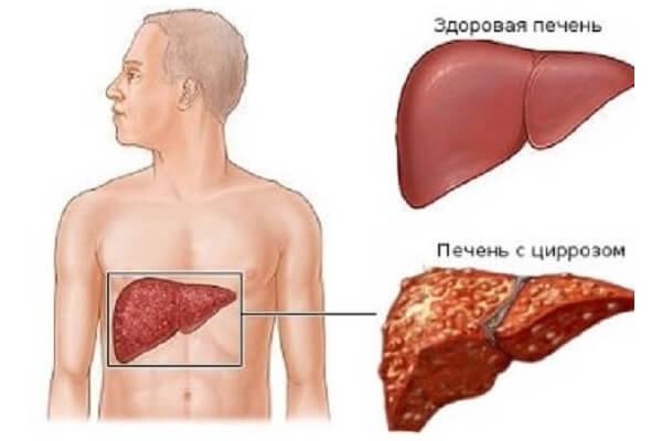 Акне при заболевании печени