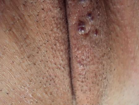 Прыщик на малой губе у женщин чем лечить