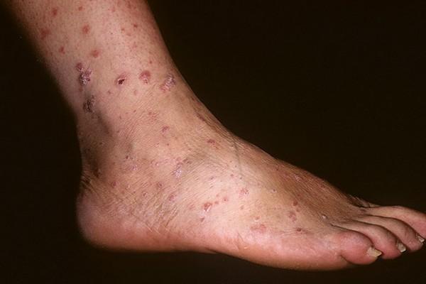 Водянистые прыщи на пальцах ног как лечить
