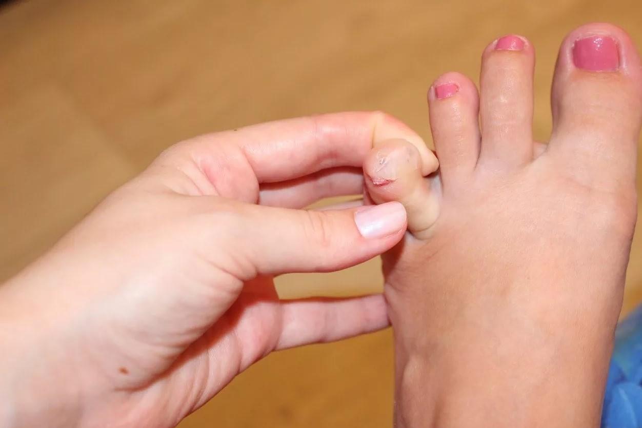Причины появления боли в пальцых ног и лечение заболеваний