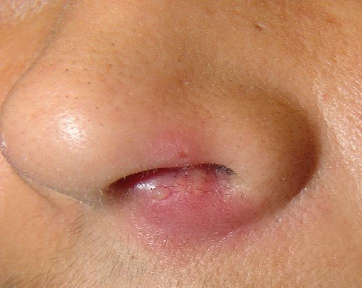 Лечение прыща в носу народными средствами thumbnail