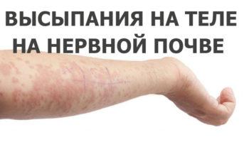 Высыпания на теле на нервной почве