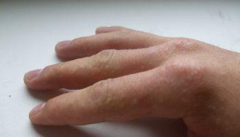 Водянистые прыщики на пальцах рук чешутся